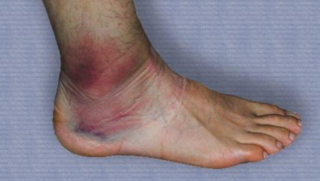 dureri articulare cu scleroză multiplă medicamente moderne pentru tratamentul artrozei