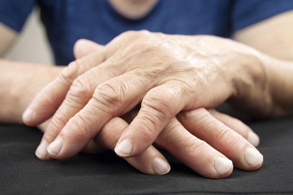 Poliartrita Reumatoida: Simptome • Poze • Analize • Tratament - ipa-law.ro