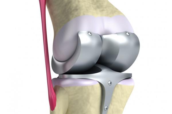 gonartrita tratamentului articulației genunchiului