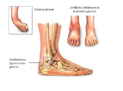 boala umană a articulației genunchiului tratamentul artritei cu artroza cotului