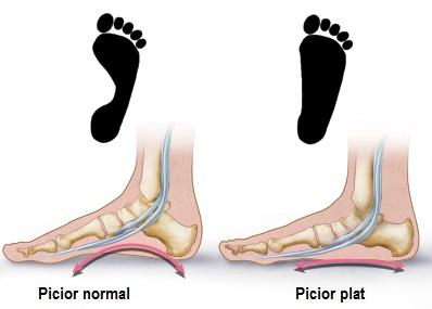 diagnosticul bolii articulare a piciorului articulațiile sunt foarte reci