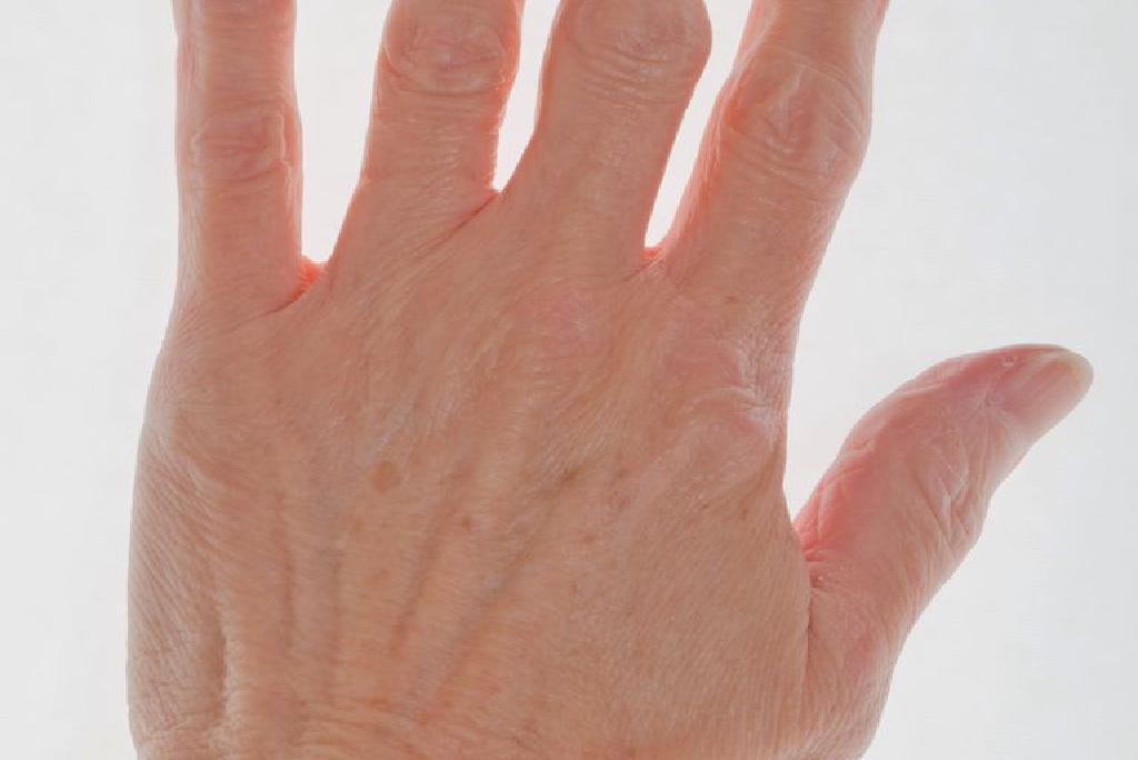 artrita tratarea degetelor