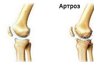 tratamentul modificărilor distrofice degenerative ale articulației genunchiului