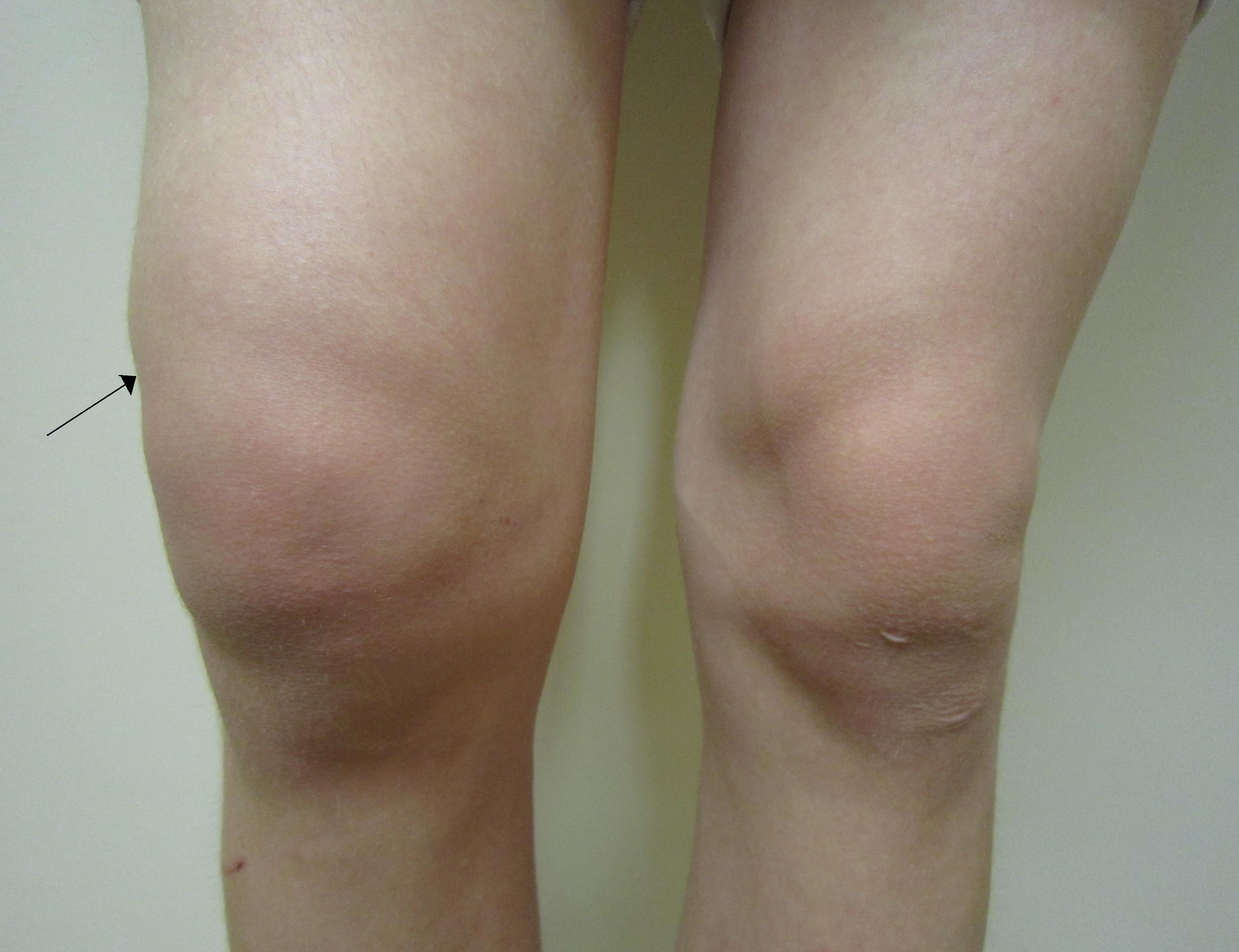 articulație sub genunchi