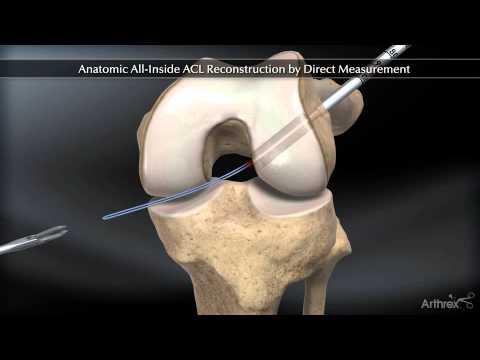 dureri articulare mișcare umăr boală articulară în dachshunds