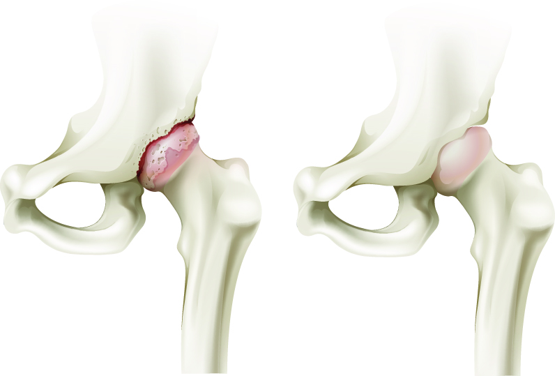 tratamentul nechirurgical al articulației șoldului