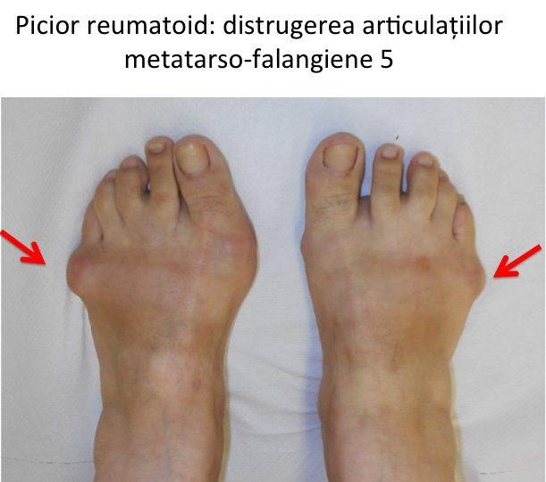 sinovita tratamentului articulațiilor falangiene