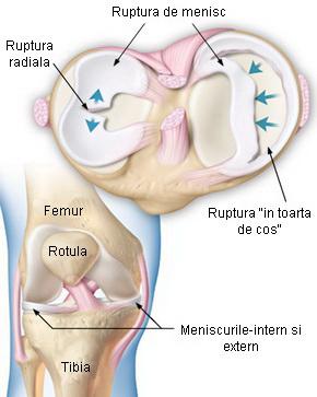 Trauma meniscului tratamentului simptomelor genunchiului, Traumatisme la nivelul genunchiului