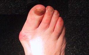articulațiile degetelor de la picioare în pantofi doare