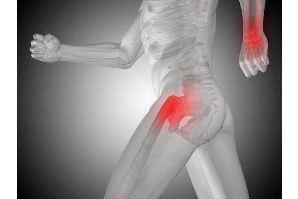 Deformarea artrozei coxartroza articulației șoldului