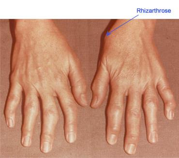 cum să tratezi durerea articulară de degetul mare