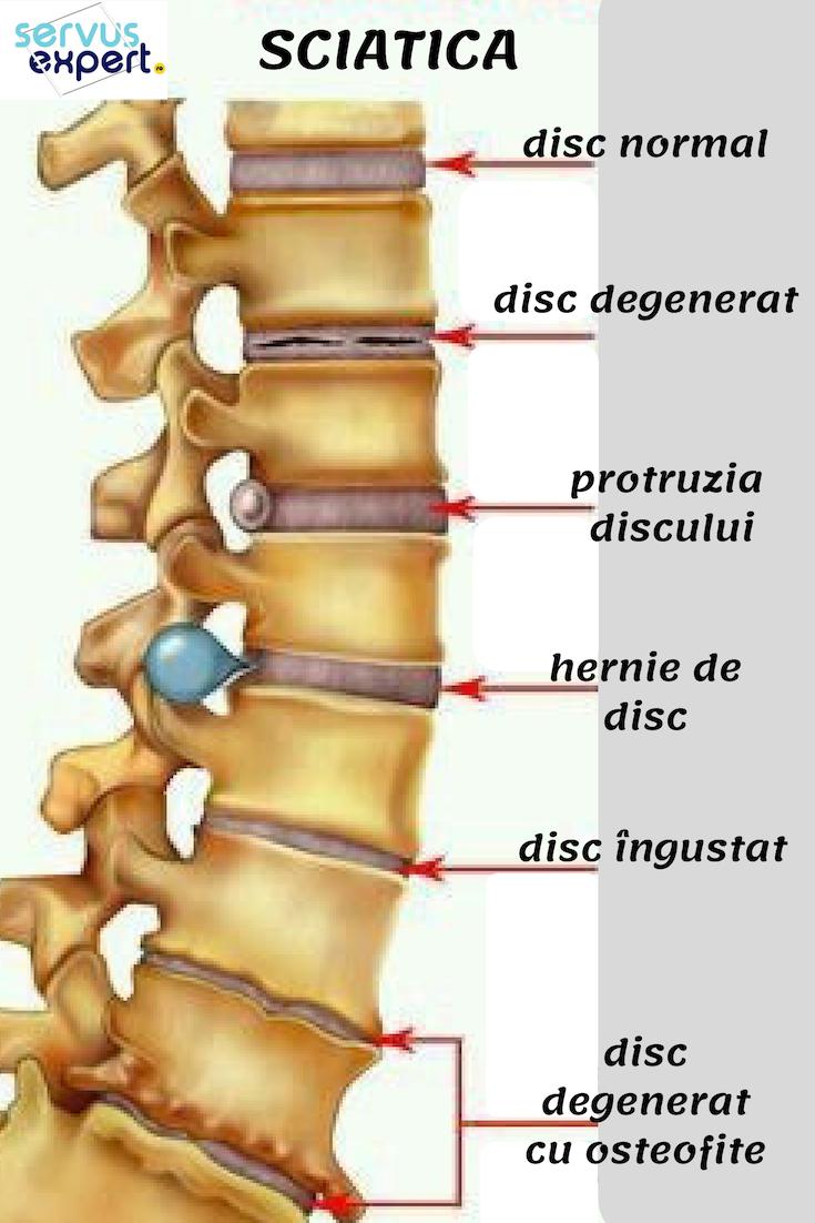 preparate pentru osteochondroza coloanei vertebrale cervicale venele din articulații doare