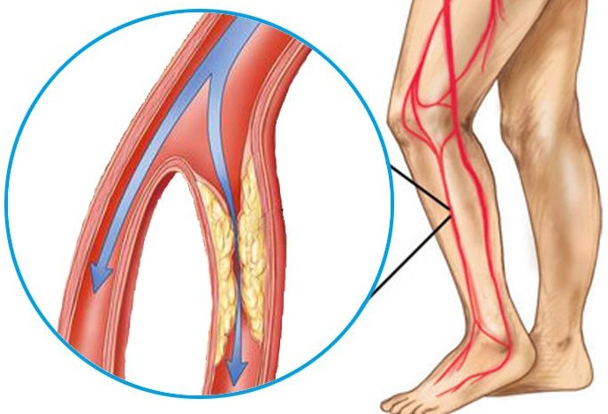 toate articulațiile pot răni cu anemie prețuri pentru unguente pentru durerile articulare