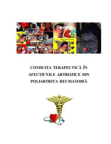 medicina mondială în tratamentul artrozei