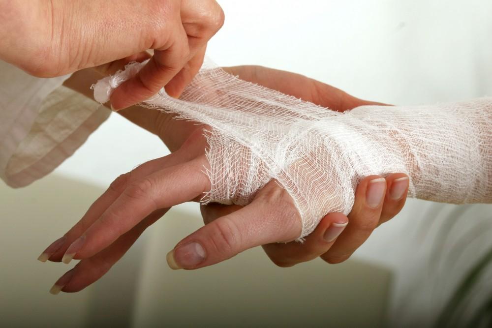 tratament de luxare a articulațiilor degetelor