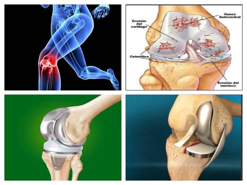 tocuri pentru artroza genunchiului