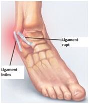 tratament articular cu xefocam dureri articulare și erupții pe mâini