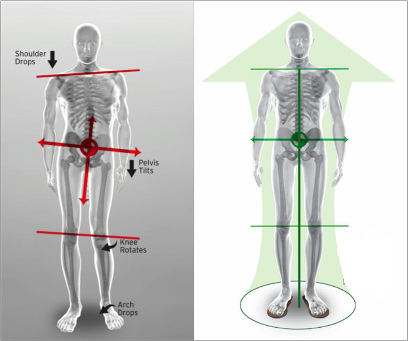Scolioză și dureri articulare