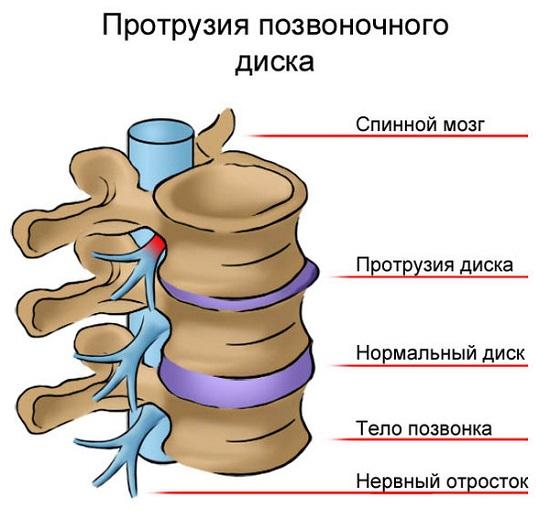 Blocarea durerii în osteochondroza coloanei lombare prin blocaj
