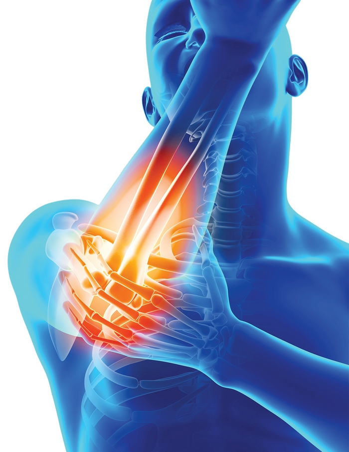 BTS pentru dureri articulare