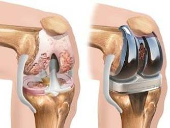 ce să faci cu artroza genunchiului articulațiile din degete se umflă dimineața