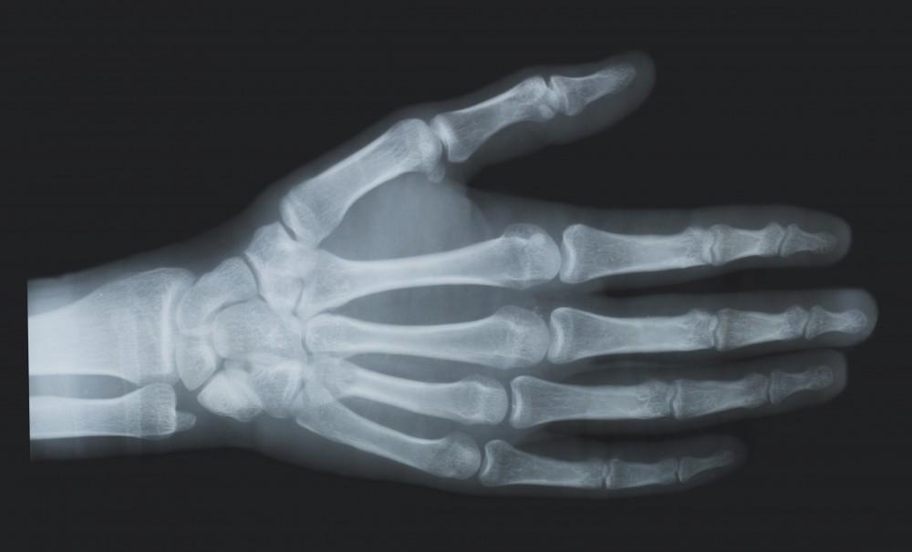boală metabolică cu leziuni articulare durere în oase și articulații pe care medicul