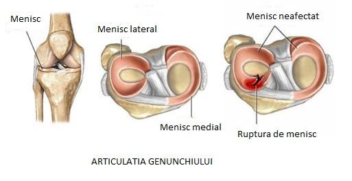 trauma meniscului tratamentului simptomelor genunchiului durerile articulare ale mamelor care alăptează