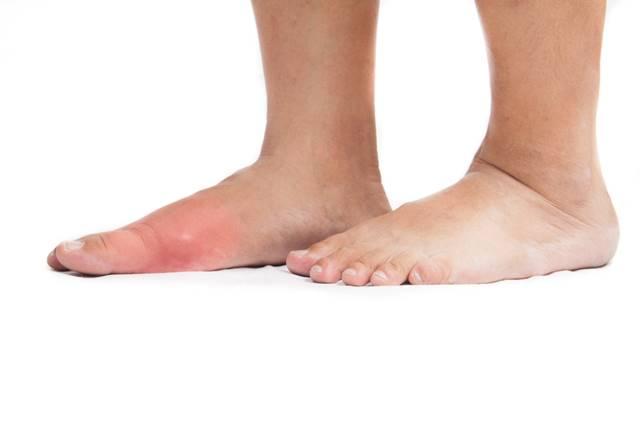poliedel pentru dureri articulare articulația genunchiului doare când este îndoită