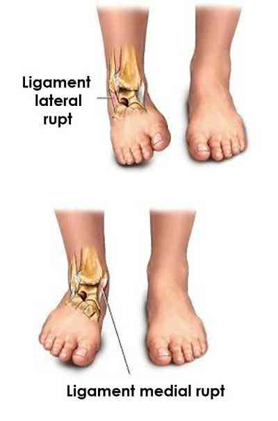 ligamentul medial al tratamentului gleznei dureri la nivelul articulațiilor degetelor după vânătăi