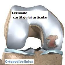 Medicina regenerativa a cartilajului | ipa-law.ro