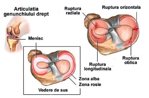 articulația umărului doare atunci când este exercitat arthroker tratament articular