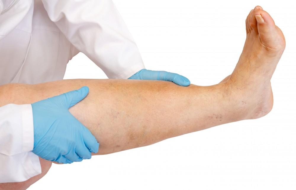 Edemul: tot ce trebuie sa stii, de la cauze si simptome la tratament | Glosar medical | MedLife