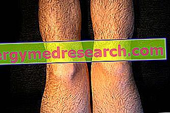 cum să amelioreze umflarea articulației genunchiului cu artroză cum să tratezi artrita posttraumatică a gleznei