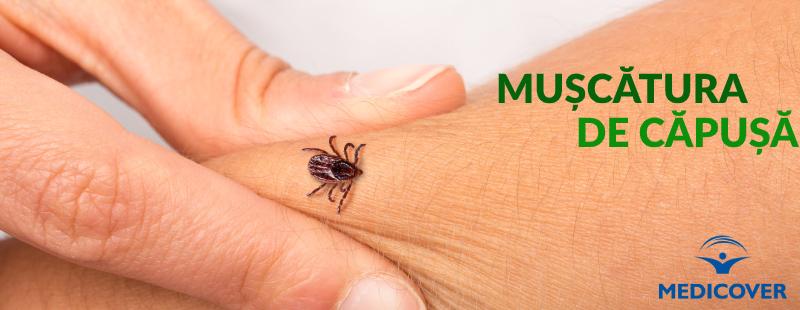 Boli cauzate de muscatura de capusa | ipa-law.ro