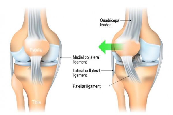 Tratamentul fracturii de patelă, Știința Arcadia