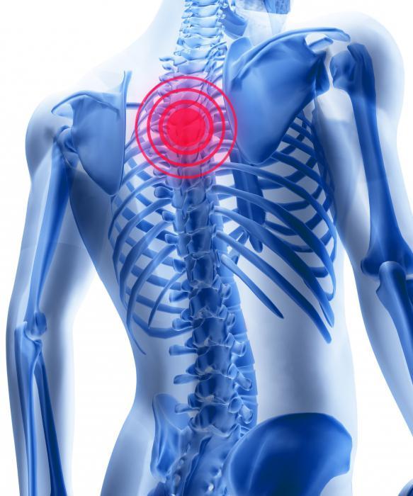 osteochondroza preparatelor coloanei vertebrale lombosacrale