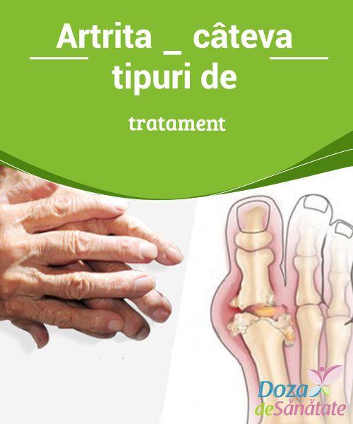 artrita ce sa faci cum sa tratezi