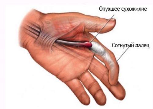 articulația de pe deget doare cu adevărat articulația în umăr și cotul doare