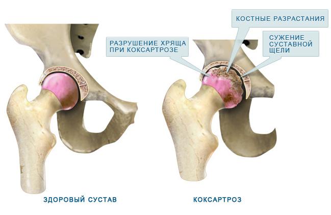 cauze de dureri în articulații mici durere de arsură acută la genunchi