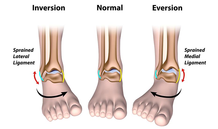 cum se manifestă artroza articulației gleznei