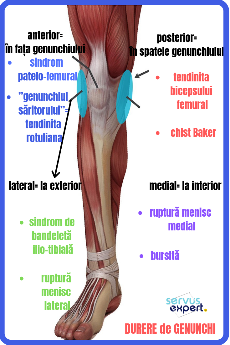 dureri frontale la genunchi plângeri cu artroza genunchiului
