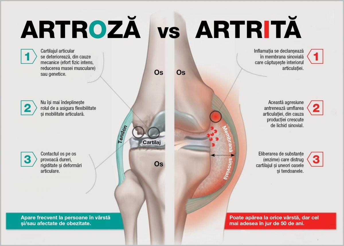 "Osteoporoza – boala ""silentioasa"" la care trebuie sa fim atenti   ipa-law.ro"