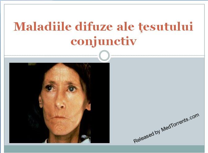 prelegere difuză a bolii țesutului conjunctiv