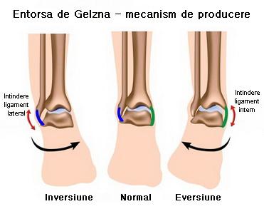 refacerea ligamentelor de gleznă după întindere tratamentul osteomielitei de șold