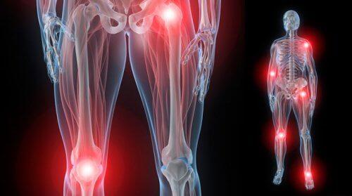 durerea articulațiilor începe noaptea tratamentul sarcomului genunchiului