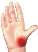 durere severă în articulația genunchiului cu artroză inflamația articulațiilor degetelor cum se tratează