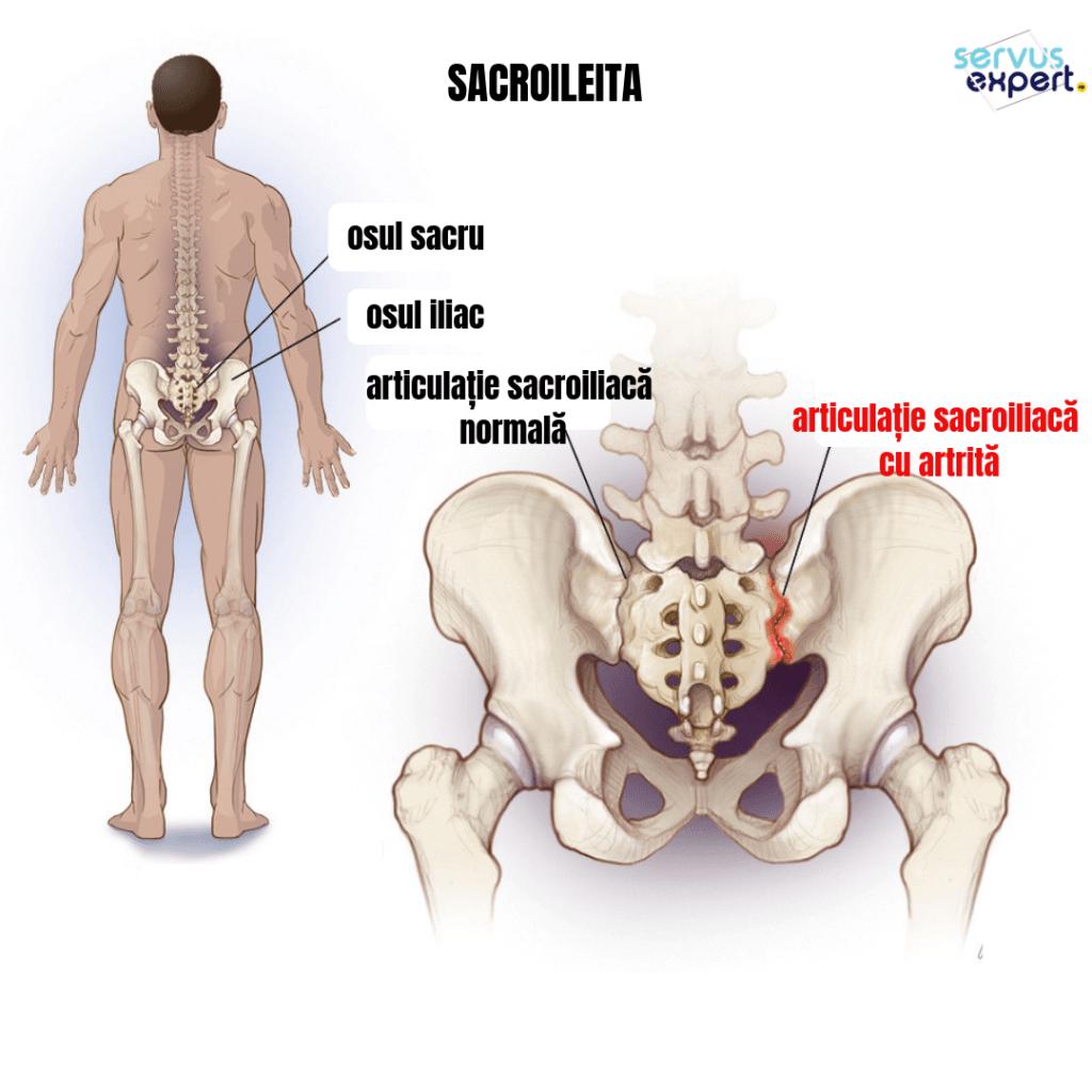 Disfunctia articulatiei sacroiliace, cauza a durerii lombare Din dureri articulare și sacru