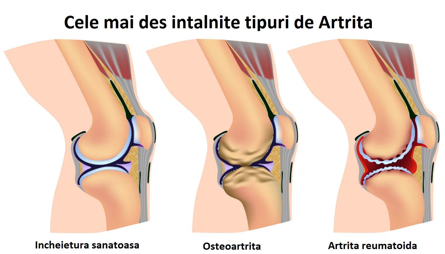 artrita artroza articulațiilor picioarelor