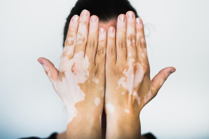 Vitiligo dureri articulare