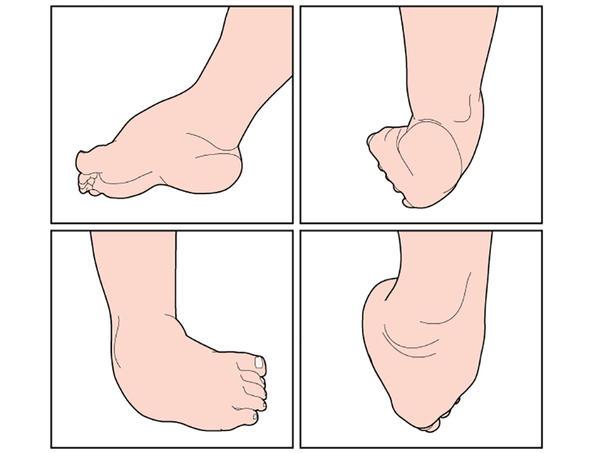 Ambii cauzează durere severă a gambelor la ambele picioare Durerile